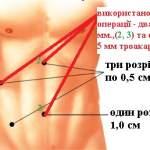 положения инструментов при лапароскопическом удалении желчного пузыря