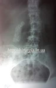 камені жовчного міхура які видно на рентгенограмі