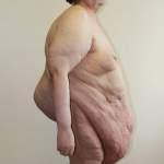 Ожирение-синдром Пиквика