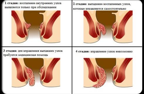 Выпадение геморроидальных узлов.
