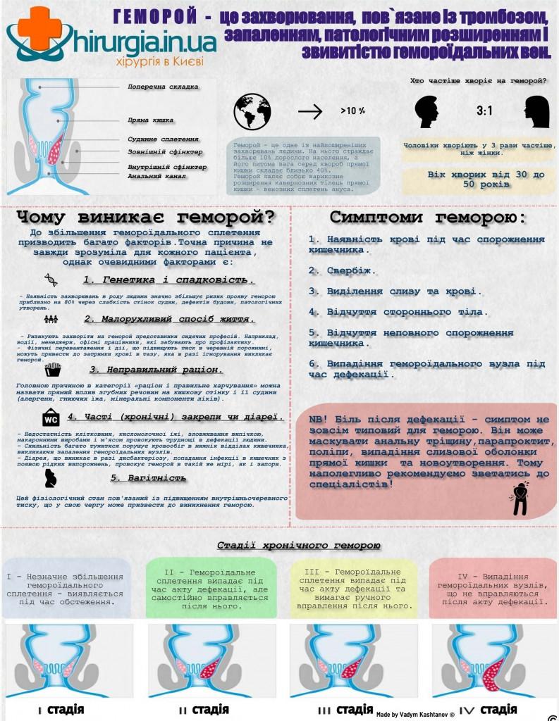 геморой - причини, симптоми, стадії.