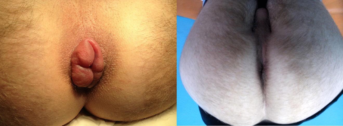 До і після операції