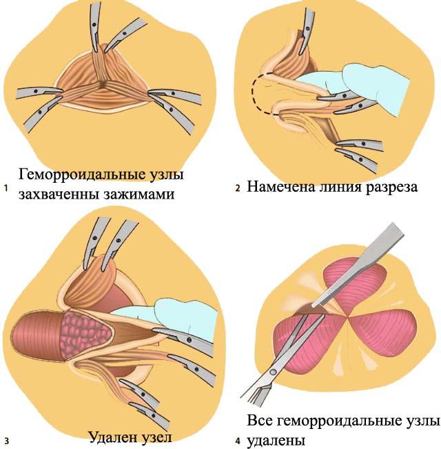 Классическая геморроидэктомия