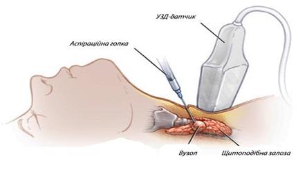 Биопсия по контролем ультразвука