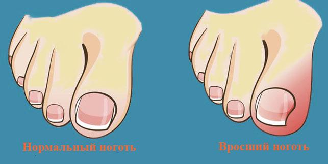 Вросший ногть
